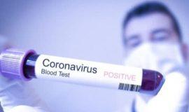 Тверская область обеспечена тест-системами на коронавирус