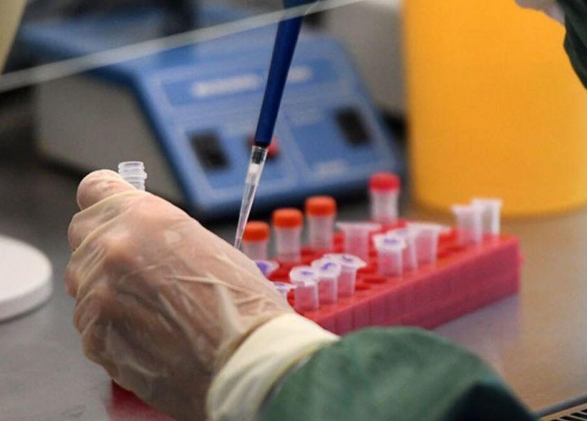 В Тверской области увеличится количество лабораторных исследований на коронавирус