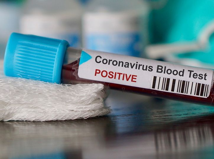 Коронавирус обнаружен в 24 муниципалитетах Тверской области