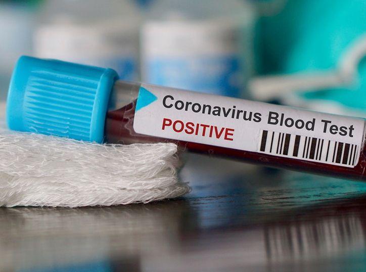 Новые случаи заражения коронавирусом зарегистрированы в Тверской области