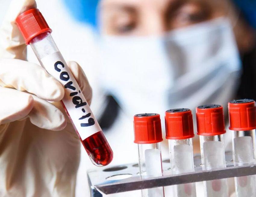 Тест на коронавирус в Тверской области за сутки сдали более 600 человек