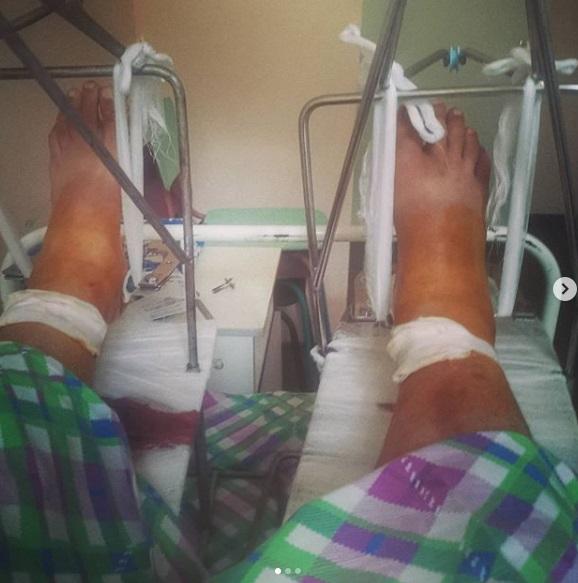 Полежайкину из «Папиных дочек» после падения с 12 метровой высоты в Твери сделали операцию