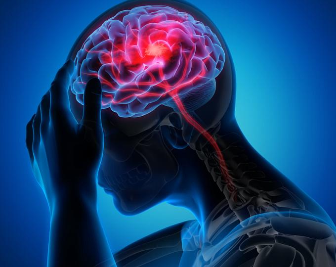 В Твери заработает «горячая линия» по вопросам борьбы с инсультом