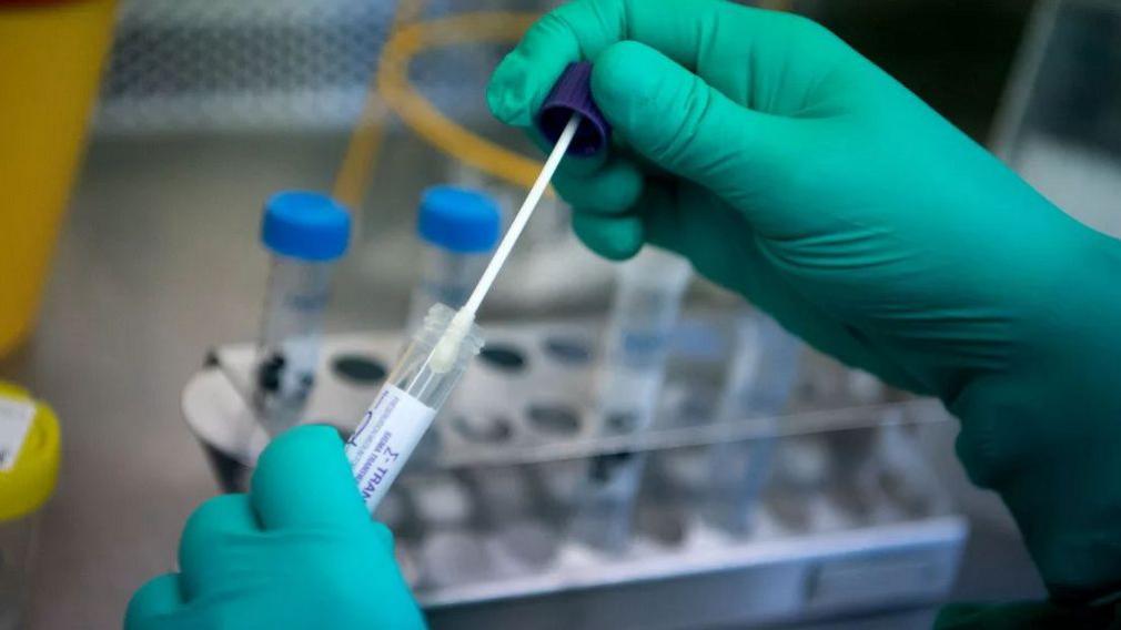 В Тверской области откроют несколько лабораторий для тестирования на коронавирус