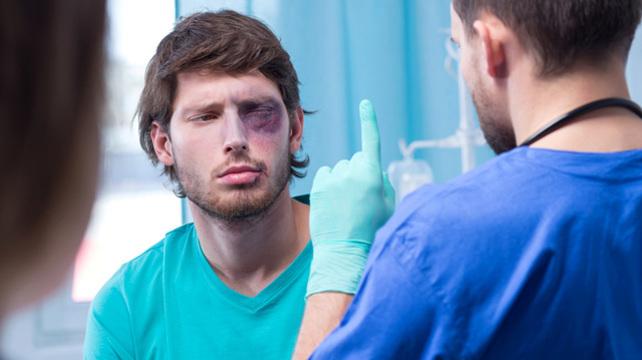В Тверской области за удар в глаз мужчина почти заплатил 50 тысяч рублей