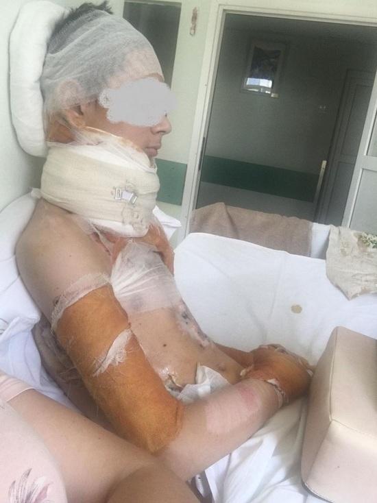 В Тверской области 14-летний мальчик чуть не сгорел в костре